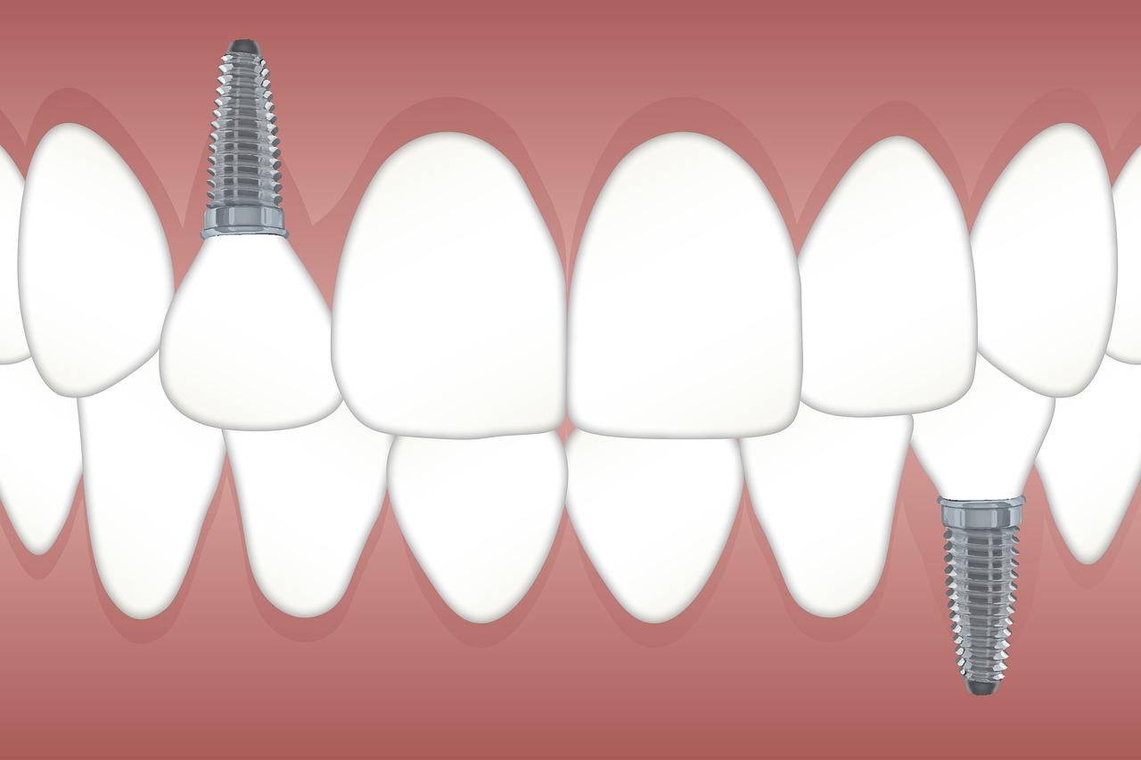 Dental implantın üstünlükləri nələrdir?
