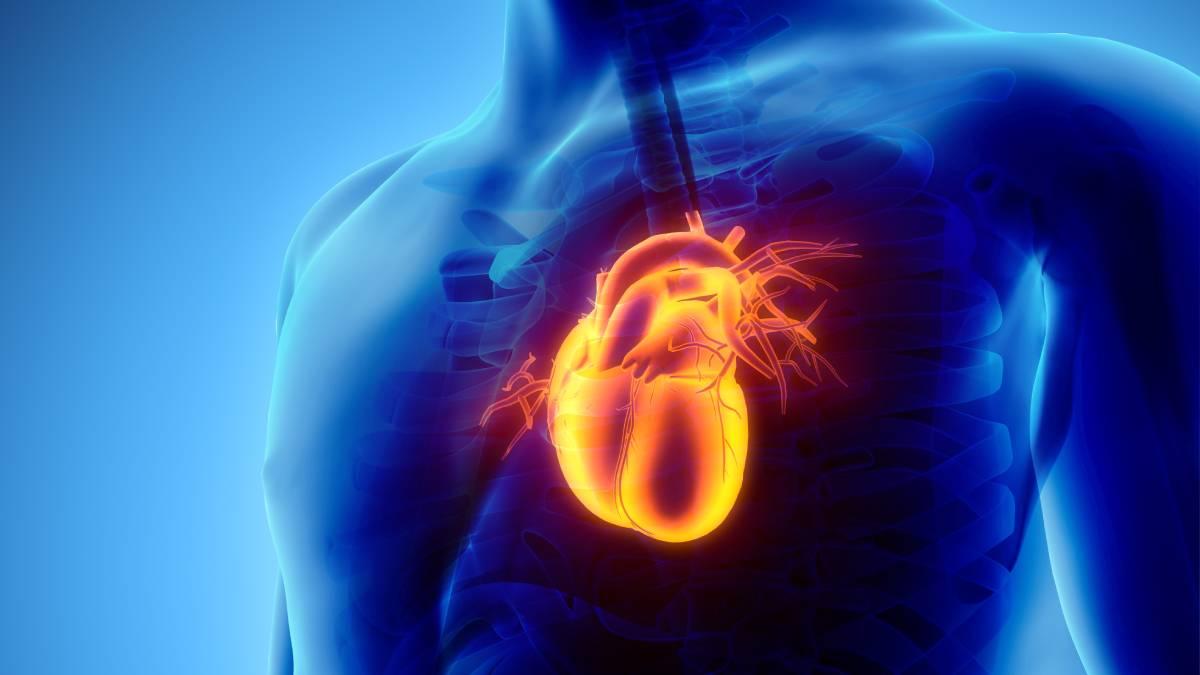 Miokard infarktın müalicəsi