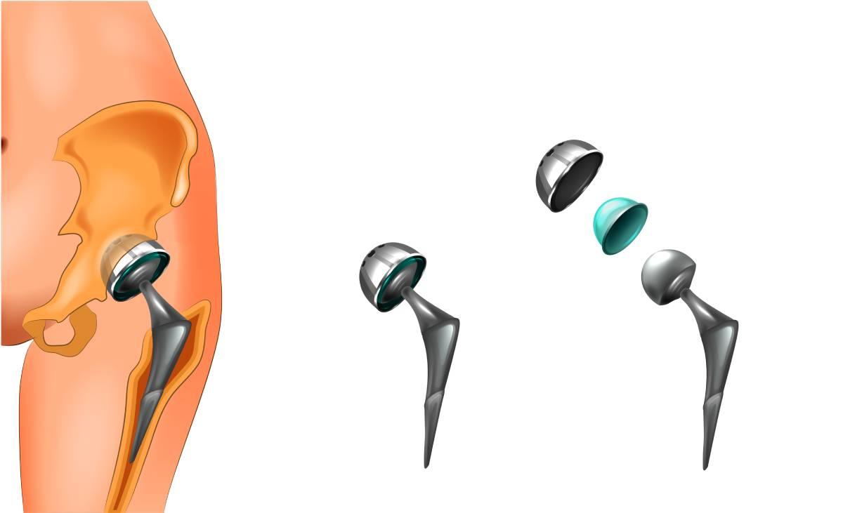 Hansı xəstələrdə bud-çanaq oynağı endoprotezi tövsiyə olunmur?